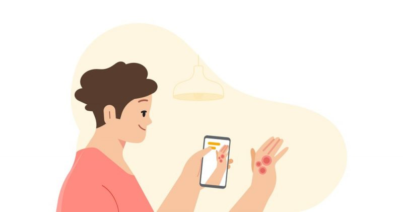 The New Google AI Tool That Can Identify 288 Skin Conditions.